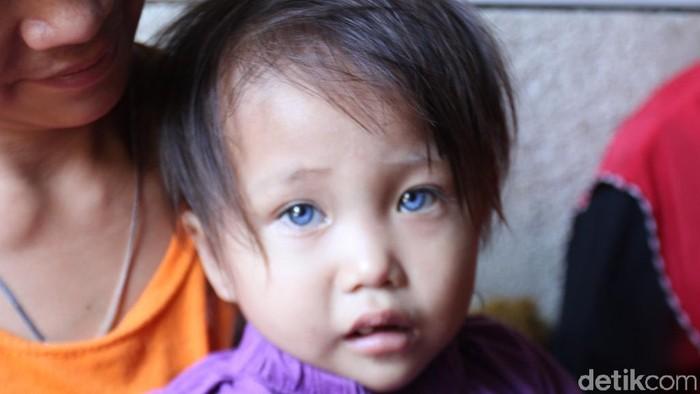 Bocah dengan 3 warna mata di Bandung (Foto: Wisma Putra)