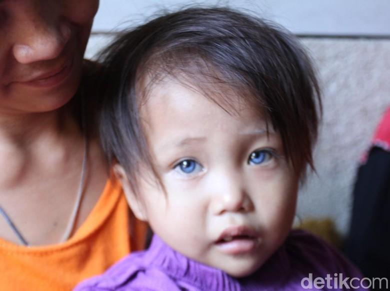 Unik! Anak Balita di Bandung Miliki Bola Mata Tiga Warna