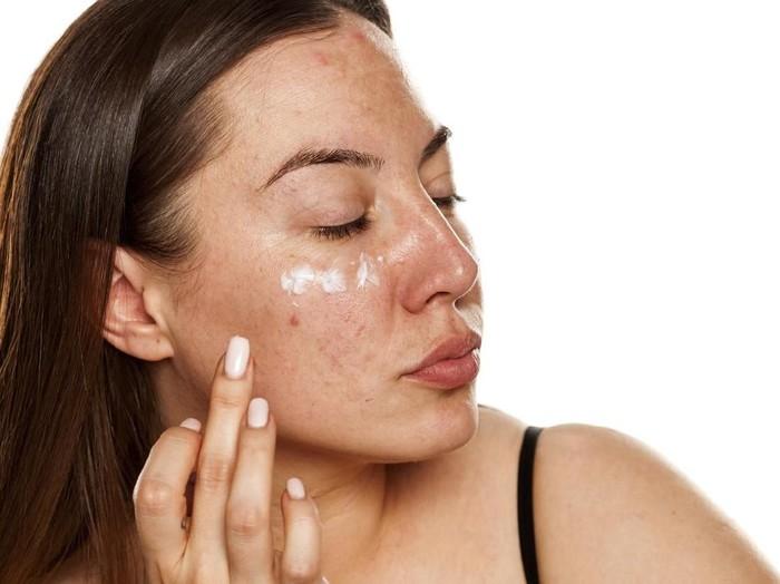 Ciri Ciri Obat Jerawat Yang Cocok Untuk Kulit Wajah