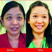 Wajah Anti Flek Hitam? Yuk Kenalin 'Diamond Bright Intensive Serum'