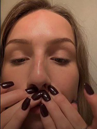 Viral Tren Tempel Bibir Pakai Lem Demi Tampil Seksi Seperti Kylie Jenner