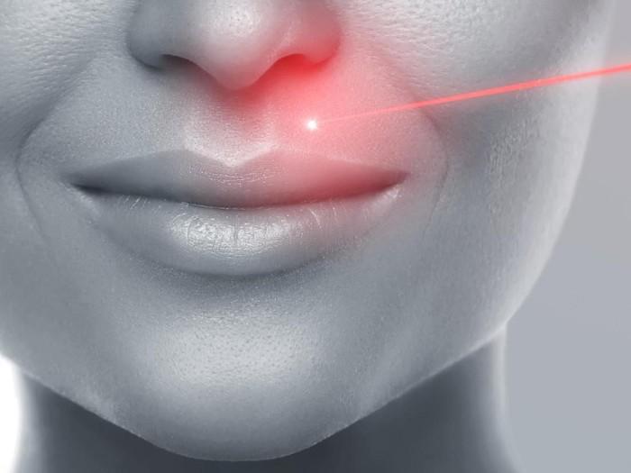Ilustrasi laser untuk wajah. (Foto: iStock)