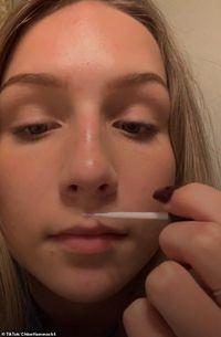 Pakar Kesehatan Ungkap Bahaya Tren Viral Tempelkan Bibir Pakai Lem