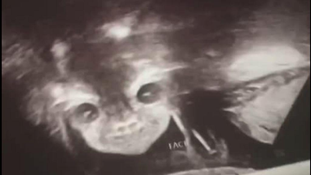 Viral Foto USG Bayi Disebut Mirip Setan, Sang Ibu Tetap Mencintainya