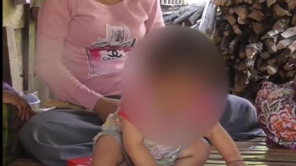 Prihatin! Ortu Tak Mampu Beli Susu, Bayi 14 Bulan Diberi Kopi