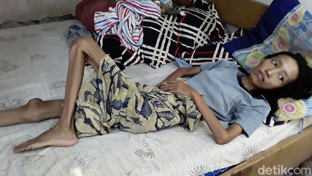 Sakit Paru-paru, Resti Tergolek Lemah Tak Punya Biaya Berobat