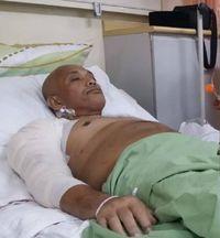 Rutin Minum Soda Tiap Hari, Pria di Malaysia Ini Nyaris Kehilangan Lengannya