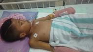 Ahmad Dani Jalani Perawatan di Surabaya Karena Alami Luka Bakar