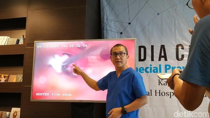 Tim dokter menjelaskan teknis operasi yang akan dijalankan (Foto: Titania Dewanti/detikHealth)