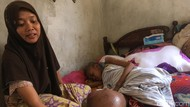 Tolong, Siswi SMP Mojokerto Butuh Bantuan Karena Sakit Kanker Tulang