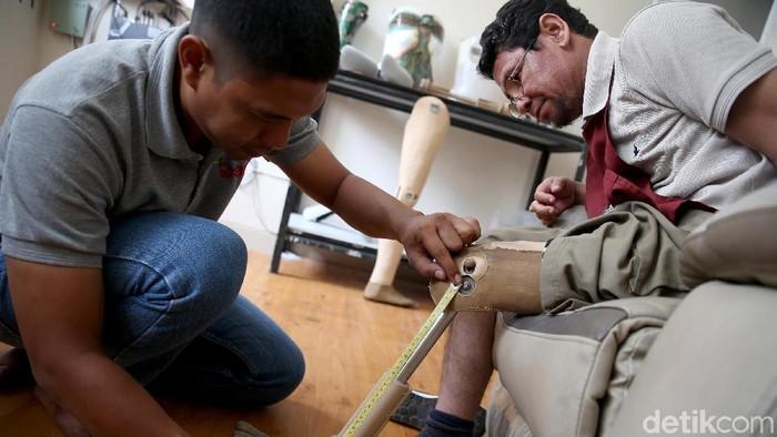 Ichwan kehilangan kakinya karena kecelakaan. (Foto: Rachman Haryanto/detikHealth)