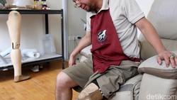 Sebagai penyandang disabilitas, Chairul Ichwan mengaku menghadapi banyak tantangan. Tapi tak sedikitpun semangat hidupnya tergerus oleh keterbatasan tersebut.