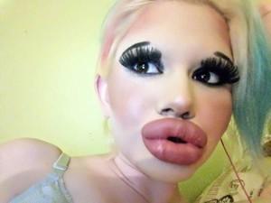 Suntik Filler 15 Kali, Wanita Bulgaria Ingin Punya Bibir Terbesar di Dunia