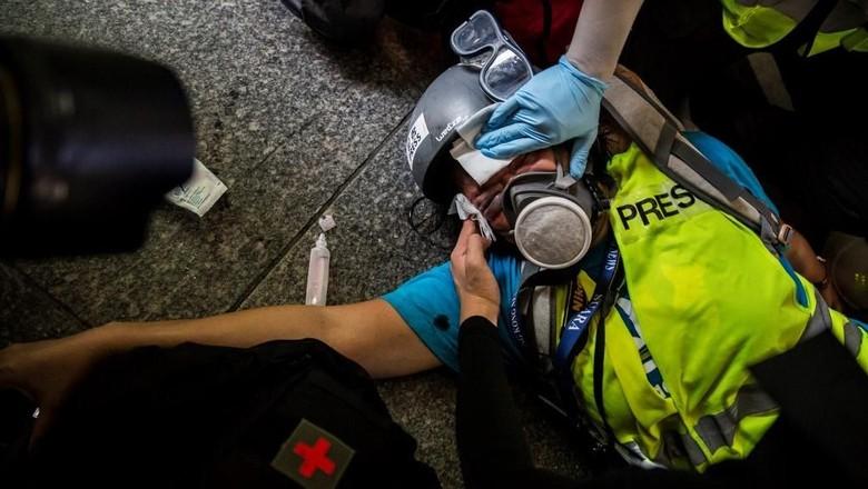 Jurnalis WNI yang Tertembak di Hong Kong Disebut Bisa Buta Permanen