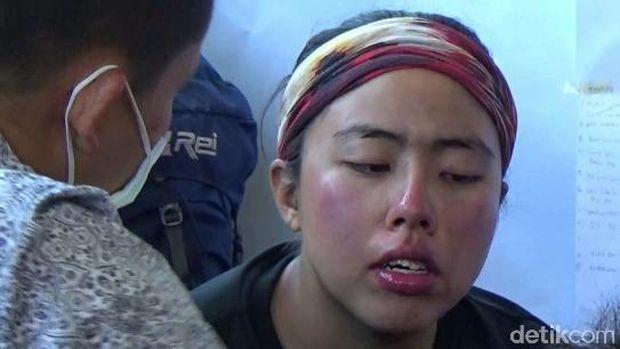 Salah satu pendaki asal Singapura yang wajahnya terbakar