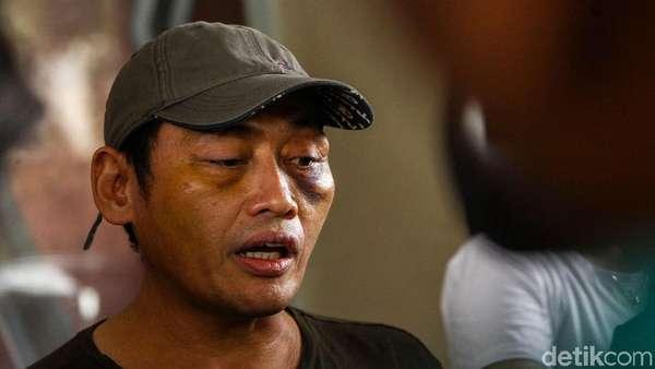Total Ada 3 Tersangka Perempuan di Penculikan Ninoy Karundeng, Ini Perannya