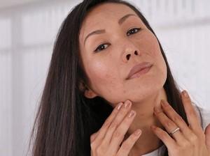 8 Bahan Skincare untuk Menghilangkan Bekas Jerawat, Diakui Dokter Kulit