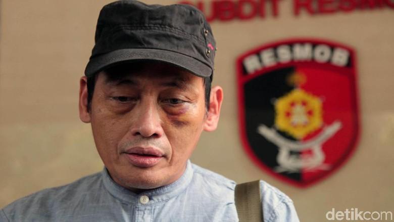 Beberkan Peran dr Insani, Ninoy Karundeng: Dia Tak Obati Saya