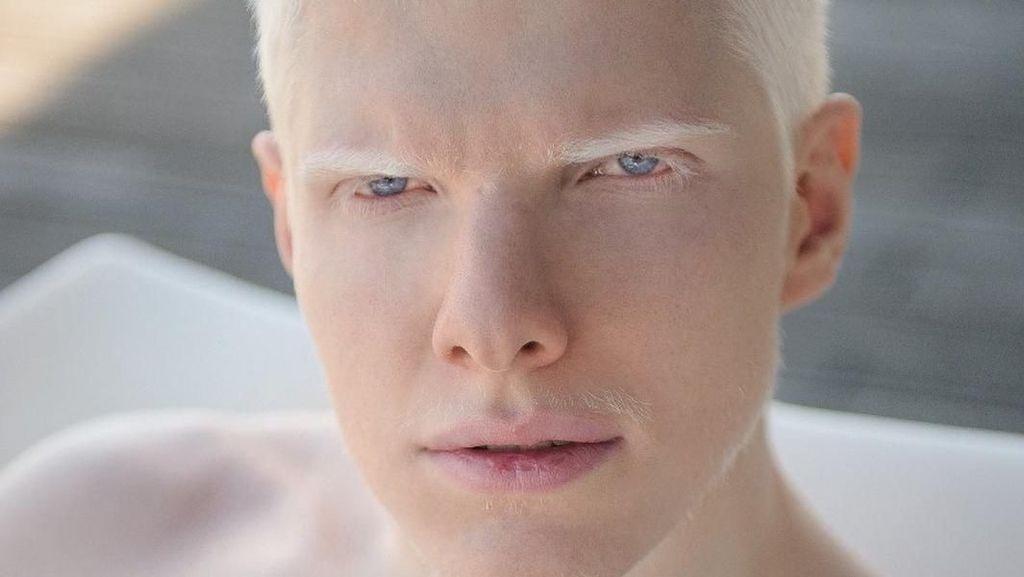 10 Pria dengan Penampilan Fisik Unik, Pesonanya Bikin Mereka Populer