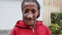 Perempuan Asal Jayapura Natalia Apaseray Operasi Tumor Wajah di Sydney