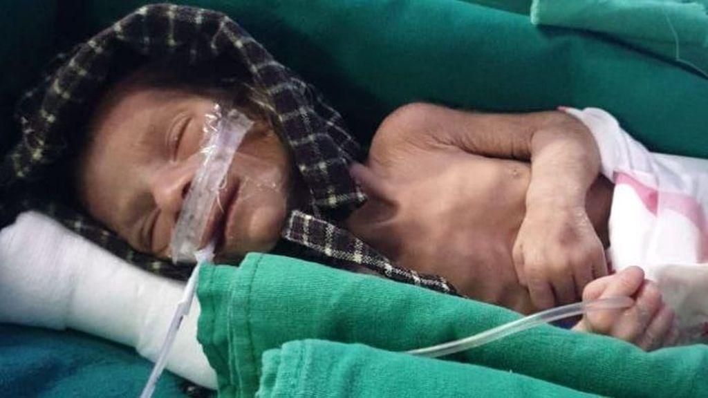 Bayi Perempuan Hidup Walau Sudah 2 Hari Dimasukkan ke Liang Kubur di India