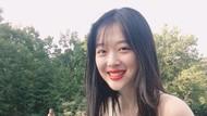 Deretan Artis Korea yang Bunuh Diri, dari Jonghyun hingga Sulli
