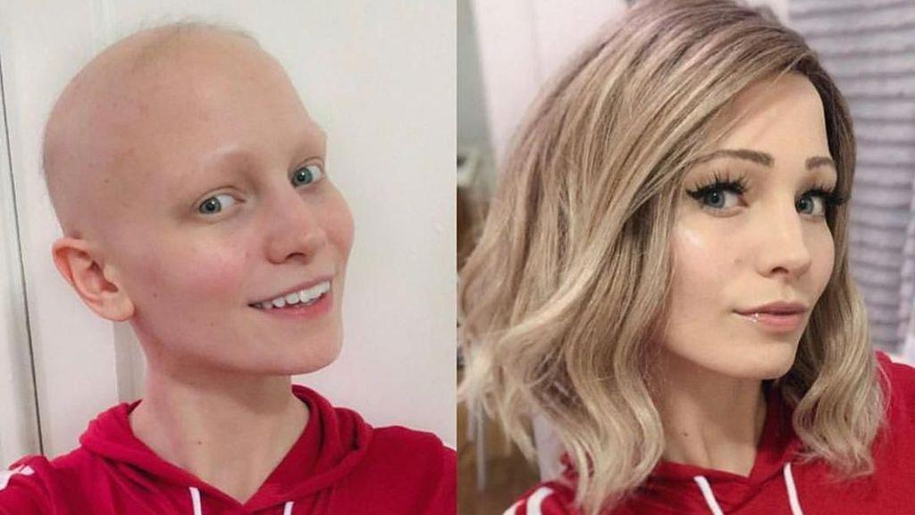 Sering Gonta-ganti Gaya Rambut, Wanita Cantik Ini Ternyata Botak