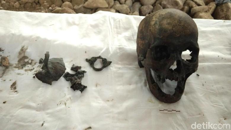 Ahli Forensik Gigi Unpad Teliti Tengkorak Misterius di Indramayu