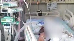 Kondisi Membaik, Dokter Lepas Alat Bantu Pernafasan Istri yang Dibakar Suami