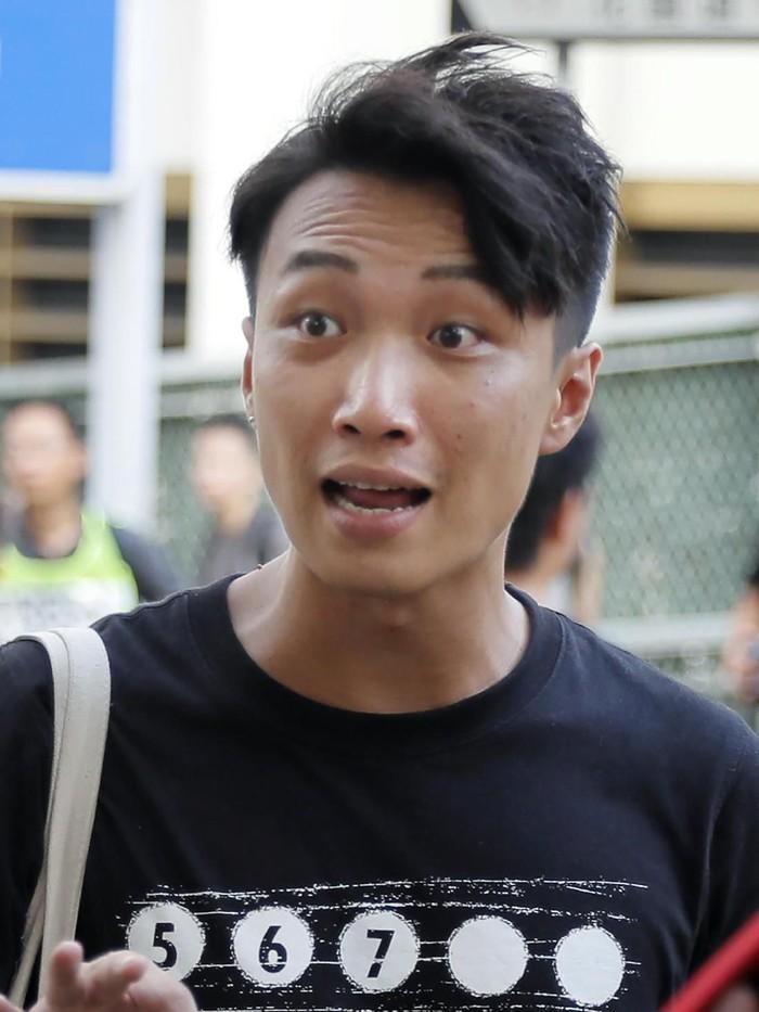 Jimmy Sham dipukuli sekelompok orang dengan palu hingga berlumuran darah (AP Photo/Kin Cheung)