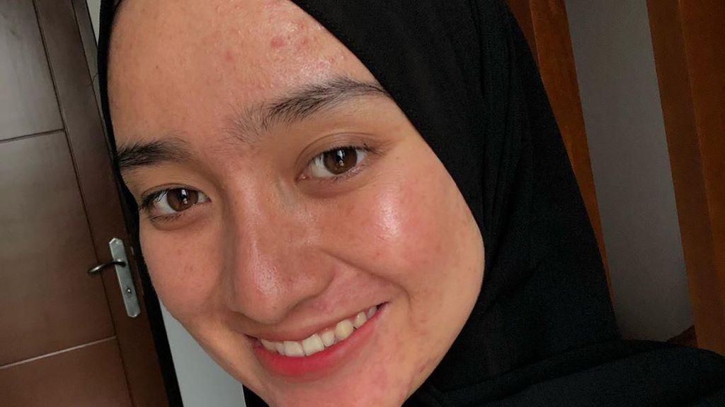 Pelajaran dari Aina Rezeki, Selebgram yang PeDe dengan Wajah Penuh Jerawat