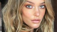 Foto: Penampakan Model Cantik yang Tiba-tiba Jerawatan Parah