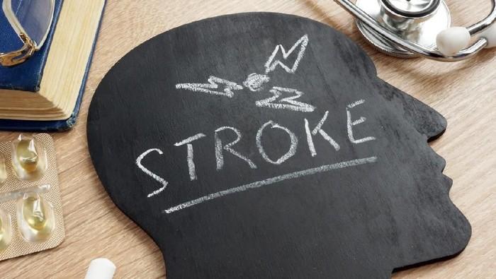 Usai kerokan, seorang pria malah terserang stroke (Foto: iStock)