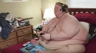 Berat Badan Ratusan Kilo, Ini 5 Kisah Penderita Obesitas dan Pola Makannya