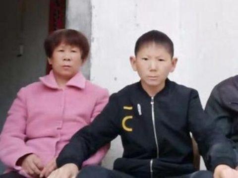 Cedera Kepala Saat Kecil Bikin Pria 34 Tahun Jadi Berwajah Anak-anak