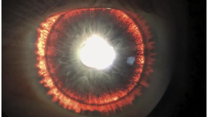 Mata pria ini bisa berpendar saat kena cahaya. Foto: NEJM