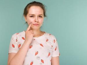 5 Bahan Aktif dalam Produk Skincare yang Ampuh Menghilangkan Jerawat