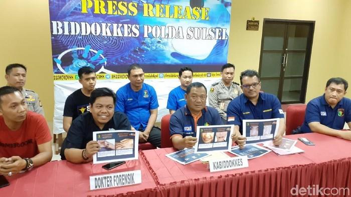Kabid Dokkes Polda Sulsel Kombes Raden Harjuno (tengah) saat konferensi pers di Makassar. (Muhammad Nur Abdurrahman/detikcom)