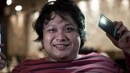 Cecep Reza Sempat Ingin Berobat ke dr Terawan