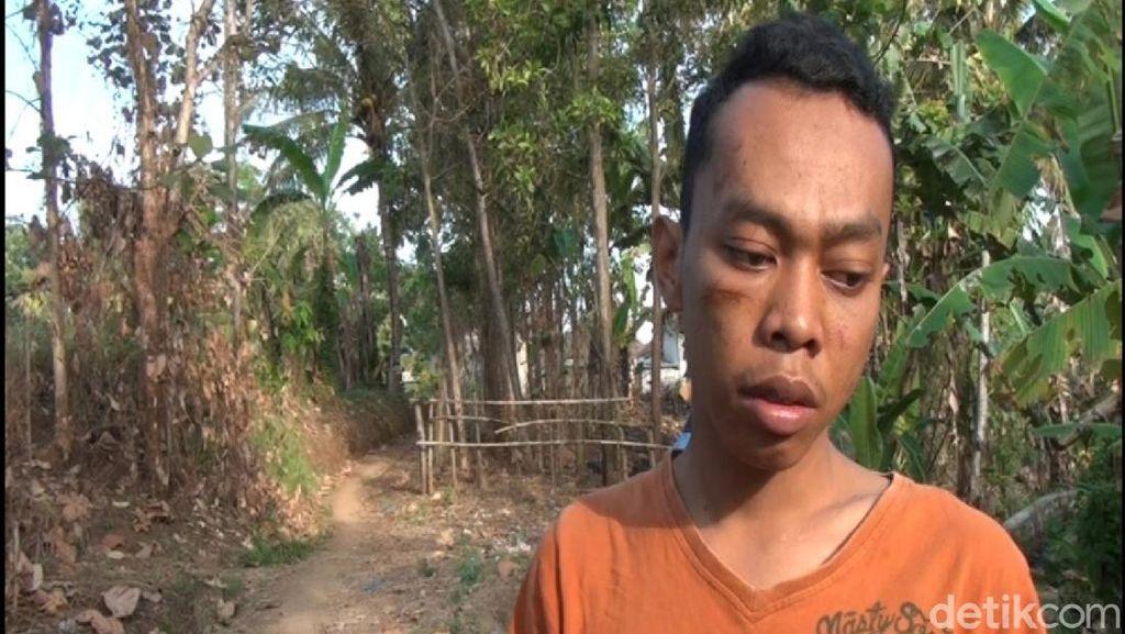 Remaja Asal Banyuwangi Ini Babak Belur, Ngaku Dihajar Makhluk Halus