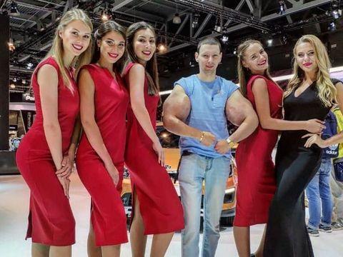 Pria Ini Terobsesi Mirip Popeye, Berakhir Tragis karena Ototnya Jadi Busuk