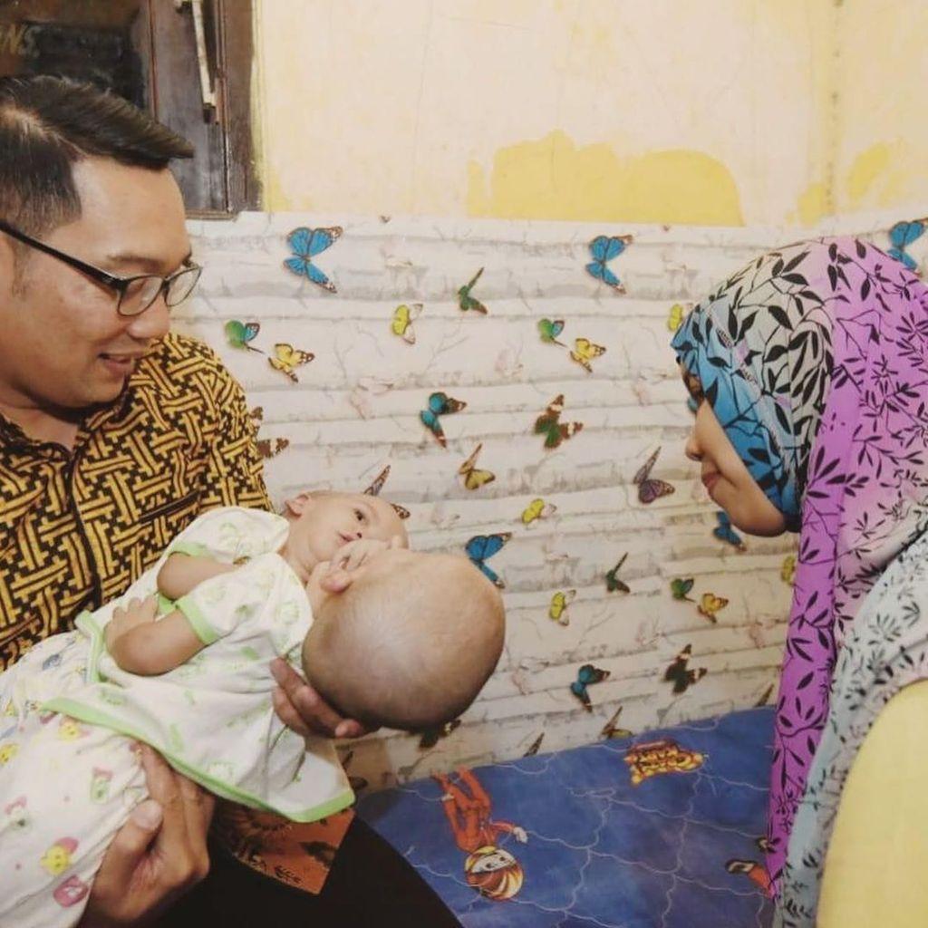 Ridwan Kamil Jenguk Bayi Kembar Dempet di Bekasi, Siap Tanggung Biaya RS