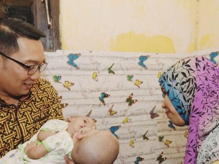 Ridwan Kamil Jenguk Bayi Kembar Dempet di Bekasi (Foto: Dokumen Ika Mutiasari)