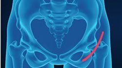 Metode Baru, Operasi Penggantian Pinggul dengan Minimal Invasif