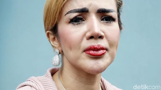 Barbie Kumalasari Curhat Ada Benjolan, Netizen Salfok ke Bibirnya