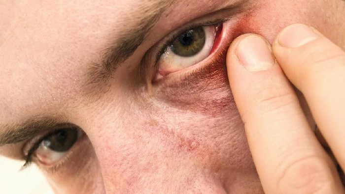 Close up shot of infected eyelid, selective focus [url=http://www.istockphoto.com/search/lightbox/12059314#633a202] [img]http://content22-foto.inbox.lv/albums187686196/grebiss/11-03-2012/eye-stye.jpg[/img][/url]