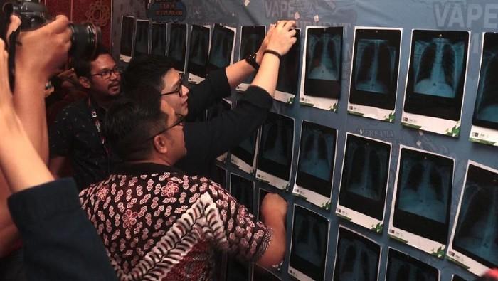 Deretan foto rontgen milik para pemakai vape. dok. Pentolan Vape Jawa Timur (PVJT)