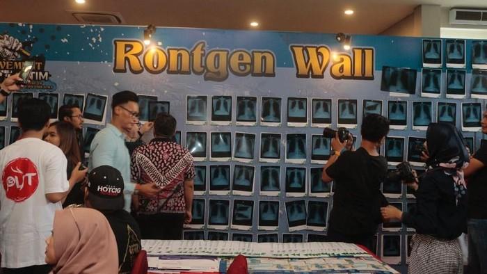 Foto galeri foto rontgen paru para pengguna vape. dok: Pentolan Vape Jawa Timur (PVJT)