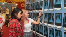 Ramai-ramai Pamerkan Foto Rontgen, Vaper Yakin Paru-parunya Bersih