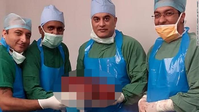 Normalnya ginjal hanya memiliki berat sekitar 130 gram. (Foto: CNN)
